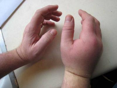 ушиб кисти руки