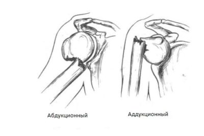 переломы хирургической шейки плеча