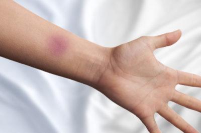 повреждение на руке
