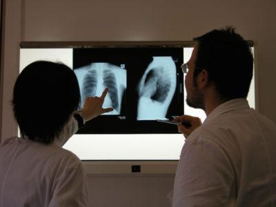 анализирование полученного снимка рентгена