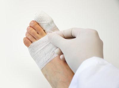 загипсованный палец