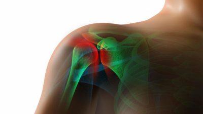 кости плечевого сустава