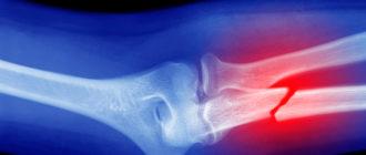 рентген травмы кости