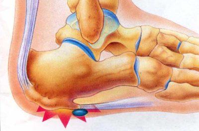 ушиб в нижней части ноги