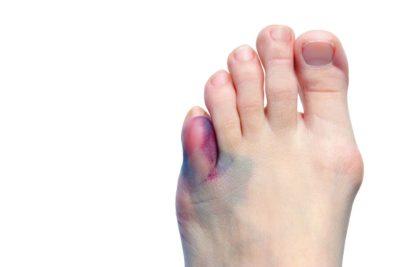 Гематома на пальцах ноги