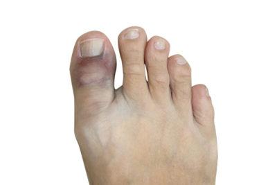 синяк на пальце