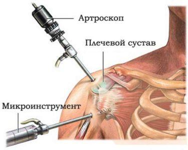 оперативное вмешательство при лечении плеча