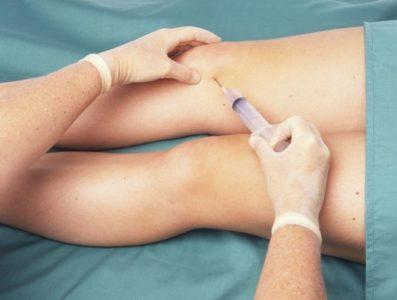 обезболивающий укол в колено