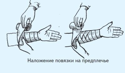 спиральная повязка на предплечье
