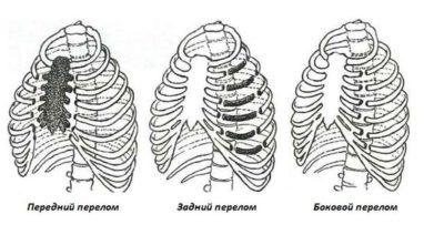виды перелома ребра