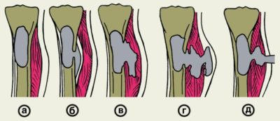 Стадии развития остеомиелита