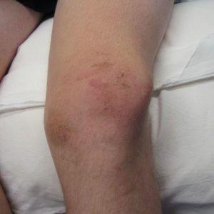 гематома у мужчины на колене