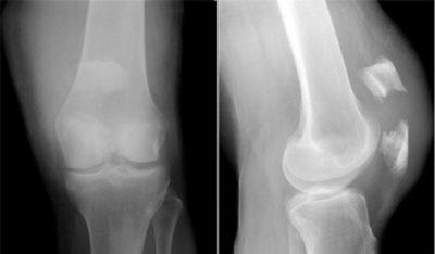 Перелом надколенника на рентгеновском снимке