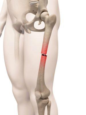 перелом диафизарной кости