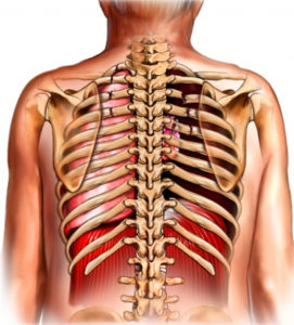 схема перелома ребер в области грудины