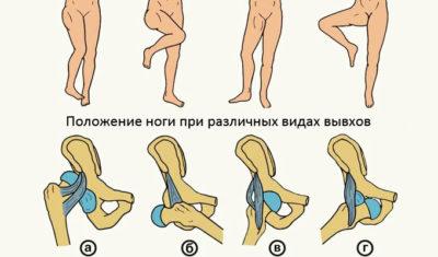 вывих бедра при различном положении ноги