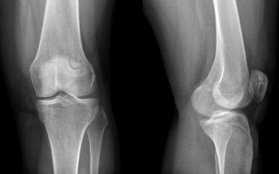 рентген надколенника