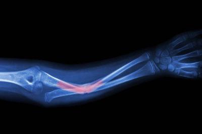 рентген травмы лучевой кости