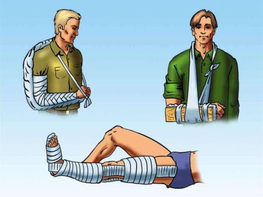 разновидности повязок при переломах