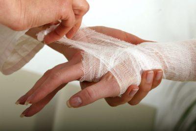 травма связок кисти