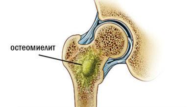 остеомиелит бедренной кости