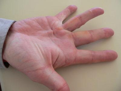 боль в связках пальцев