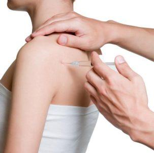 Изображение - Акромиально ключичное сочленение плечевого сустава 1007357-303x300