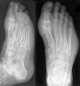 рентген пальцев ног
