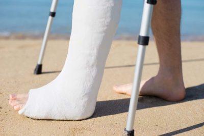 нога в гипсе и костыли