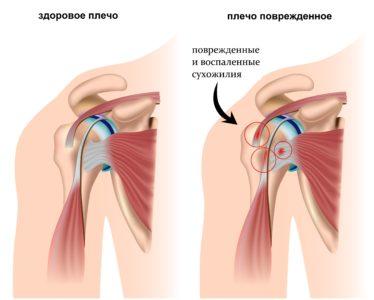 воспаление в плечевом суставе