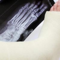 диагноз сломанной лодыжки