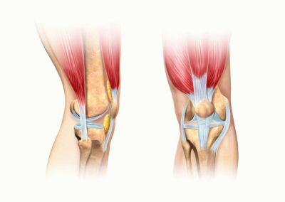 связки в колене