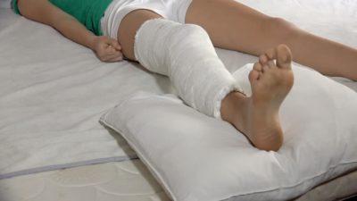 гипс в области коленного сустава