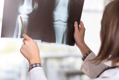 рентген травмы коленного сустава