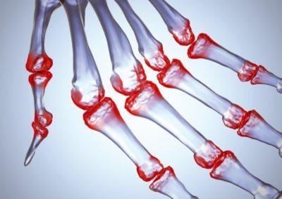 Остеоартроз суставов пальцев рук