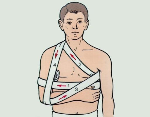 наложить повязку на руку и плечо