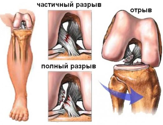 надрыв связки коленного сустава