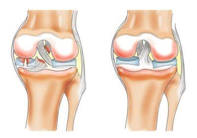 крестообразная связка в колене