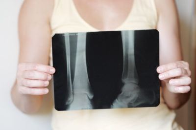 Рентген связок голеностопа