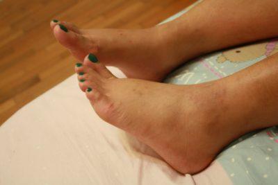 1 степень растяжения связок голеностопа