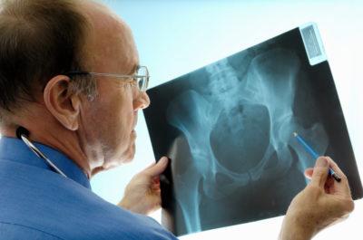 изучение рентгенснимка