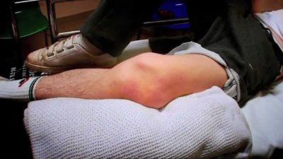 Изображение - Утолщение связок коленного сустава maxresdefault-7-400x225