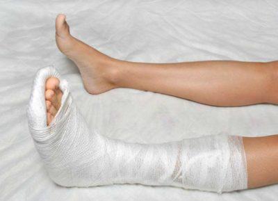3 степень растяжения связок голеностопа