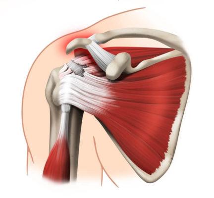мышцы на лопатке