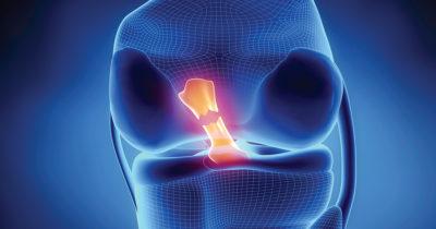 схематическое изображение связок колена