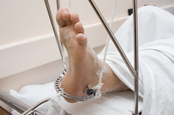 вытяжение ноги
