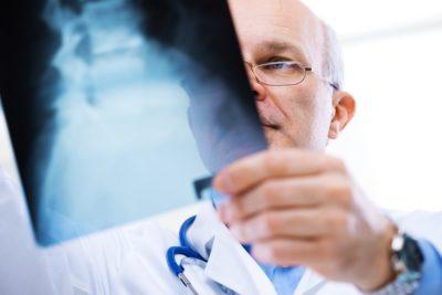 диагностика рентгена позвоночника
