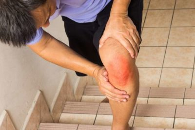 резкий переразгиб колена