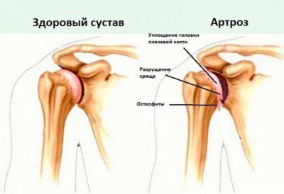 Изображение - Акромиально ключичное сочленение плечевого сустава sustav-2-768x527-400x274
