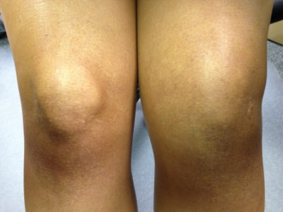 Изображение - Связки и сухожилия коленного сустава swollen-knee-treatment-swollen-knee-switzerland-pdf-ppt-case-reports-symptoms-400x300